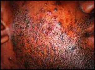 Les causes des poils incarnés de barbe