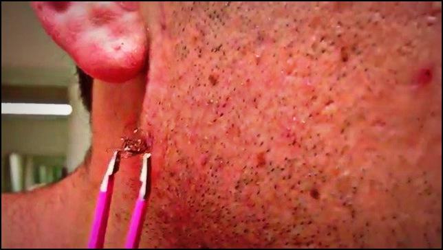 1. Retirer un poil incarné à la pince à épiler
