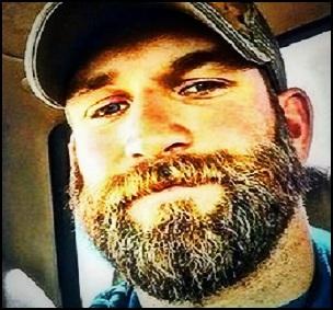 Comment se débarrasser des pellicules de barbe ?