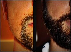 La greffe de barbe