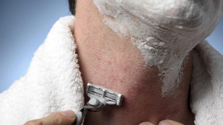 Bosses dBosses de rasoir : causes, remèdes maison et traitemente rasoir : causes, remèdes maison et traitement