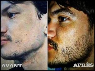 Tout ce qu'il faut savoir sur les effets du Rogaine (Minoxidil) sur votre barbe