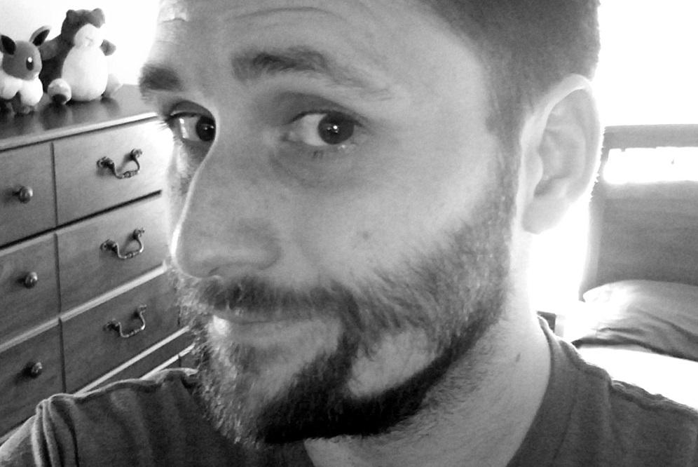 Alopecia barbae : comment traiter les zones chauves de votre barbe