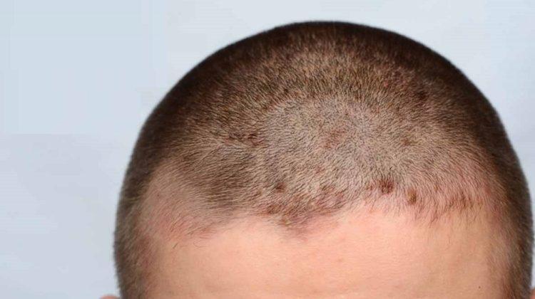 La dermatite séborrhéique provoque-t-elle une perte de cheveux ?